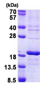 SDS-PAGE - Recombinant Human RPS16 protein (denatured) (ab167882)