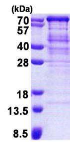 SDS-PAGE - Recombinant Human TUG protein (ab167886)