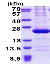 SDS-PAGE - Recombinant Human RPL11 protein (ab167891)