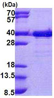 SDS-PAGE - Recombinant Human TTC35 protein (ab167894)