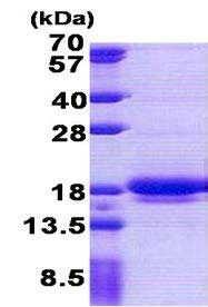 SDS-PAGE - Recombinant Human LIMD2 protein (ab167895)