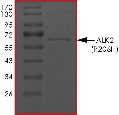 SDS-PAGE - Recombinant human Activin Receptor Type IA (mutated R206 H) protein (ab167922)