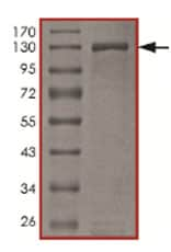 SDS-PAGE - Recombinant human PKD2 (mutated G870 E) protein (ab167923)