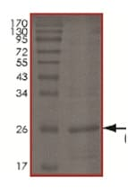 SDS-PAGE - Recombinant Human UBE2D3 protein (ab167945)