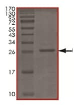 SDS-PAGE - Recombinant Human UCHL3 protein (ab167959)