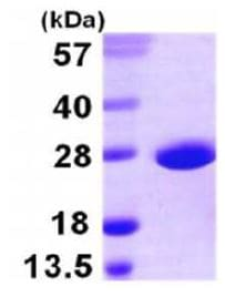 SDS-PAGE - Recombinant sodA protein (ab167999)