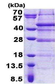 SDS-PAGE - Recombinant Human C17orf81 protein (ab168089)
