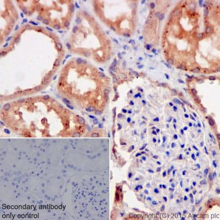 Immunohistochemistry (Formalin/PFA-fixed paraffin-embedded sections) - Anti-Galactosidase alpha antibody [EP5828(2)] (ab168341)