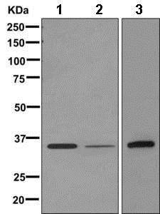 Western blot - Anti-DOK5 antibody [EPR9923(B)] (ab168343)