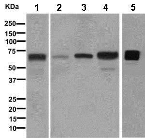 Western blot - Anti-C9 antibody [EPR11232] (ab168345)