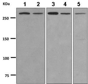 Western blot - Anti-KAT4 / TBP Associated Factor 1 antibody [EPR7145(2)] (ab168346)