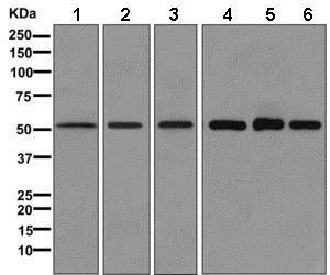 Western blot - Anti-Lumican antibody [EPR8898(2)] (ab168348)