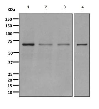Western blot - Anti-CDK5RAP3 antibody [EPR11293] (ab168353)