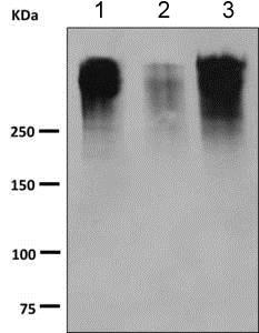 Western blot - Anti-MUC16 antibody [EPSISR23-96] (ab168360)