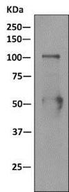 Immunoprecipitation - Anti-Nucleolin (phospho T76) antibody [EPR8080-2] (ab168363)