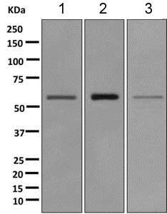 Western blot - Anti-Glypican 4 antibody [EPR11271] (ab168364)