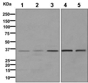 Western blot - Anti-PPP2CB antibody [EPR11786(B)] (ab168371)