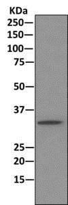 Immunoprecipitation - Anti-PPP2CB antibody [EPR11786(B)] (ab168371)