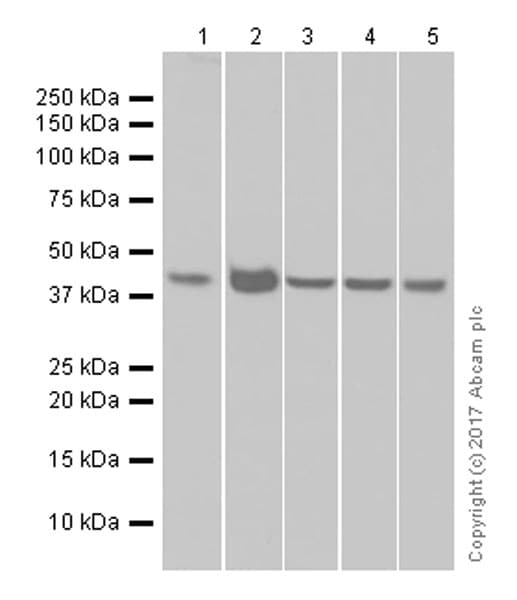 免疫印迹-抗丙酮酸脱氢酶E1α亚单位抗体[EPR11098](ab168379)
