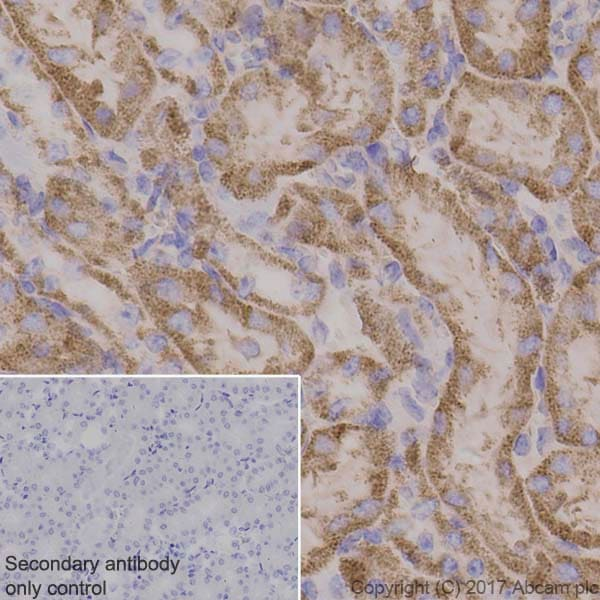 Immunohistochemistry (Formalin/PFA-fixed paraffin-embedded sections) - Anti-Pyruvate Dehydrogenase E1-alpha subunit antibody [EPR11098] (ab168379)