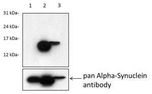 Western blot - Anti-Alpha-synuclein (phospho S129) antibody [MJF-R13 (8-8)] (ab168381)