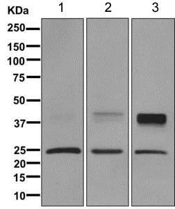 Western blot - Anti-Aquaporin 1 antibody [EPR11588(B)] (ab168387)