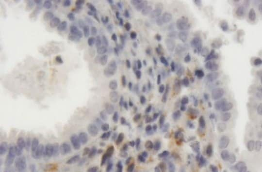 Immunohistochemistry (Formalin/PFA-fixed paraffin-embedded sections) - Anti-LRP1 antibody (ab168454)