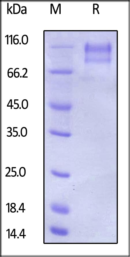 SDS-PAGE - Recombinant Human CD34 protein (ab168689)