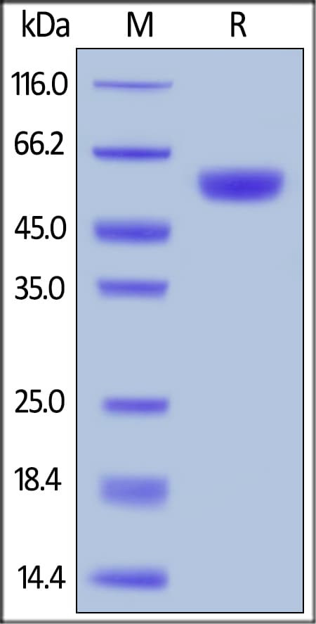 SDS-PAGE - Recombinant human BACE1 protein (ab168695)