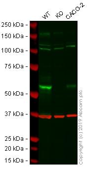 Western blot - Anti-MMP14 antibody [EP1264Y] - Low endotoxin, Azide free (ab168726)