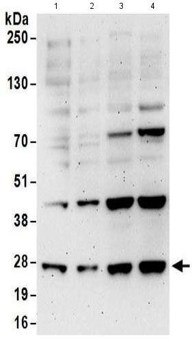 Western blot - Anti-EXOSC5/CML28 antibody (ab168804)