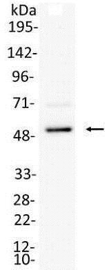 Immunoprecipitation - Anti-IRF8 antibody (ab168808)