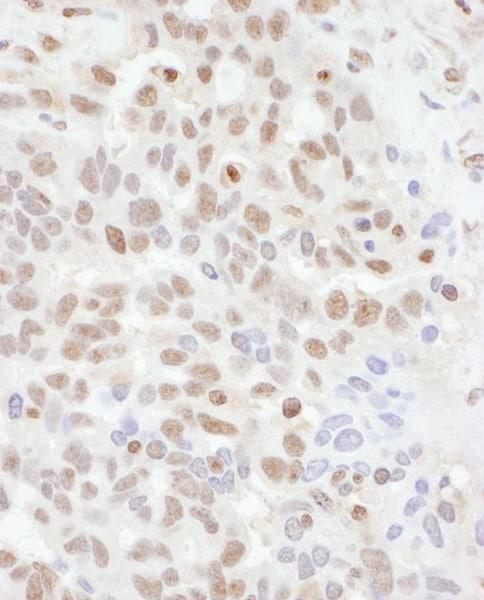 Immunohistochemistry (Formalin/PFA-fixed paraffin-embedded sections) - Anti-ADAR1 antibody (ab168809)