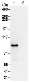 Immunoprecipitation - Anti-ASCC2 antibody (ab168811)