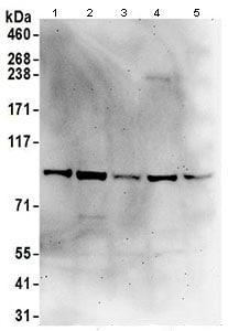 Western blot - Anti-ASCC2 antibody (ab168811)