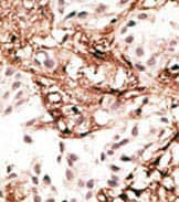Immunohistochemistry (Formalin/PFA-fixed paraffin-embedded sections) - Anti-LC3C antibody (ab168813)