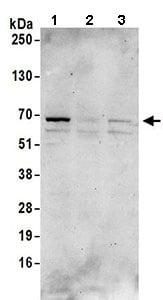 Western blot - Anti-CAMKK2 antibody (ab168818)