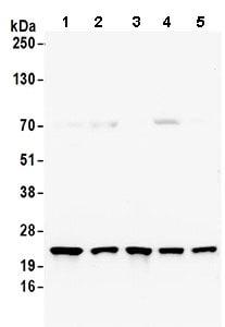 Western blot - Anti-RPS5 antibody (ab168823)