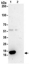 Immunoprecipitation - Anti-TCEB2/Elongin-B antibody (ab168836)