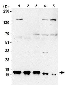 Western blot - Anti-TCEB2/Elongin-B antibody (ab168836)