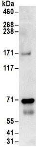 Immunoprecipitation - Anti-Pericentrin 1/FROUNT antibody (ab168839)