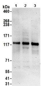 Western blot - Anti-RanBP17 antibody (ab168842)
