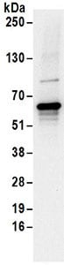 Immunoprecipitation - Anti-EDC3 antibody (ab168851)