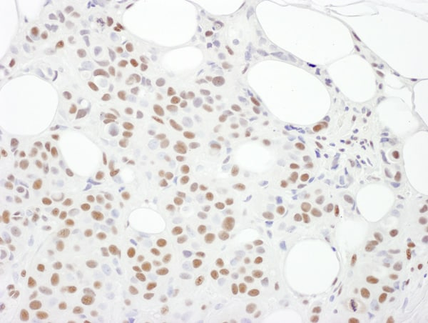 Immunohistochemistry (Formalin/PFA-fixed paraffin-embedded sections) - Anti-DNA PKcs antibody (ab168854)