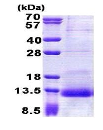 SDS-PAGE - Recombinant Human SPINK1/P12 protein (ab168878)