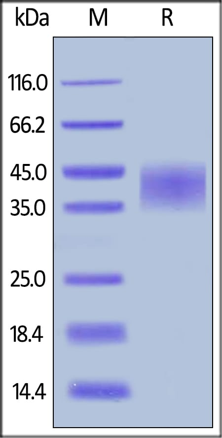 SDS-PAGE - Recombinant human TNF Receptor II protein (ab168884)