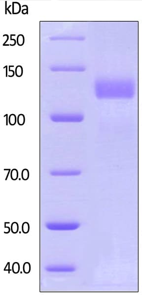 SDS-PAGE - Recombinant human ErbB 2 protein (Active) (ab168896)