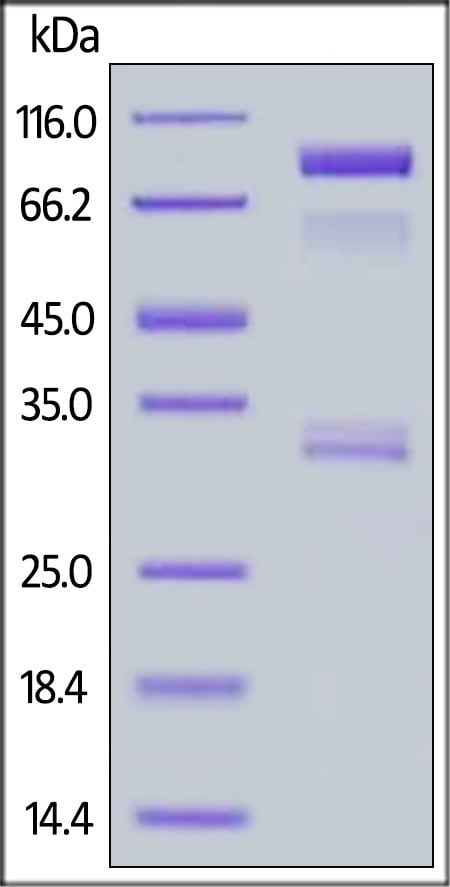 SDS-PAGE - Recombinant Human BACE1 protein (Fc Chimera) (ab168902)