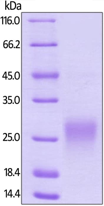 SDS-PAGE - Recombinant human Fas Ligand protein (ab168908)