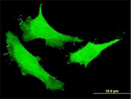 Immunocytochemistry/ Immunofluorescence - Anti-NUSAP antibody (ab169083)
